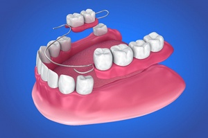 3D illustration of partial dentures in Newington against blue background
