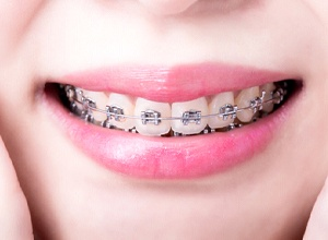 Close-up of woman's smile with traditional metal braces