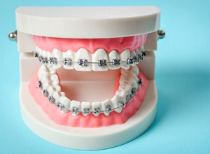 Dental model with braces against light blue background