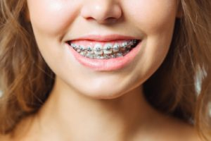 happy smile with braces after handling orthodontic problems at home