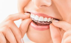 Close-up of woman's smile with Invisalign in Newington