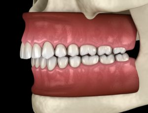 Illustration of overbite, a bite problem that Invisalign can fix